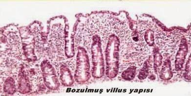 villus2